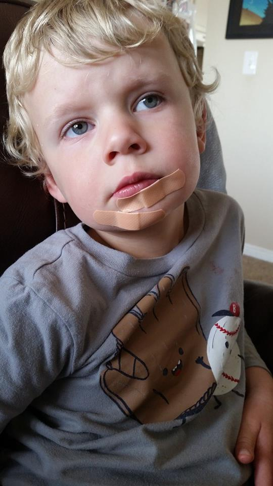 the bite, all bandaged
